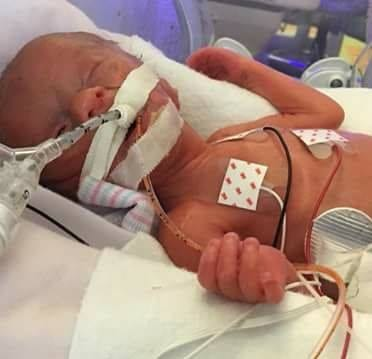 Born premature at 29 weeks, Hannah Joy thrived against all odds