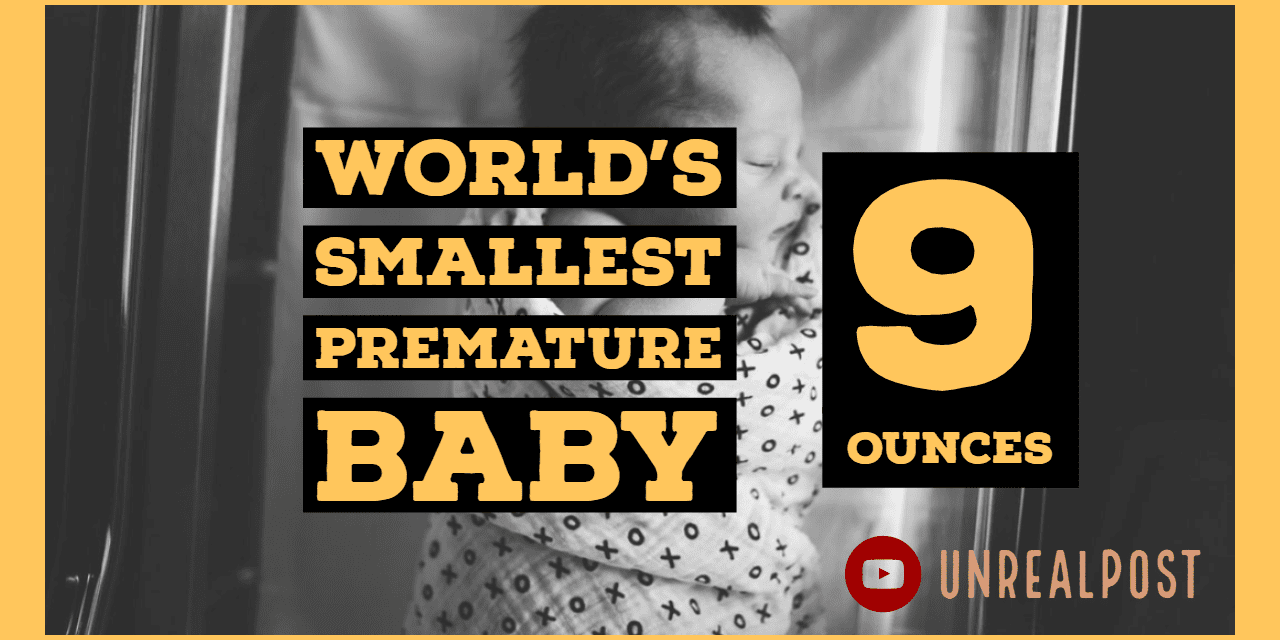 World's Smallest Baby Only 9 Ounces Survives and Head's Home
